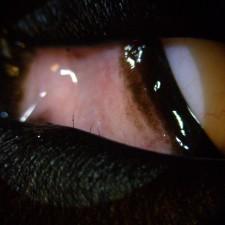 17. Distichiasis, hår som vokser ut fra kanten av øyelokket