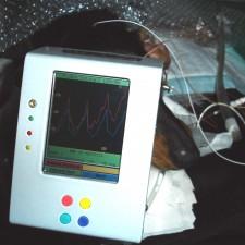 5. Elektroretinografi. Kurven på apparatet viser at hunden har normale tapepr i netthinnen
