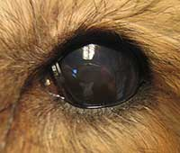 Kunstigt øje (silikoneøje)