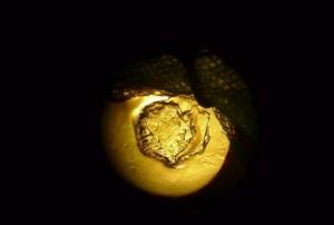 Området i hornhinden efter kirurgisk fjernelse af corpus nigrum. Billedet er optaget gennem operationsmikroskopet.